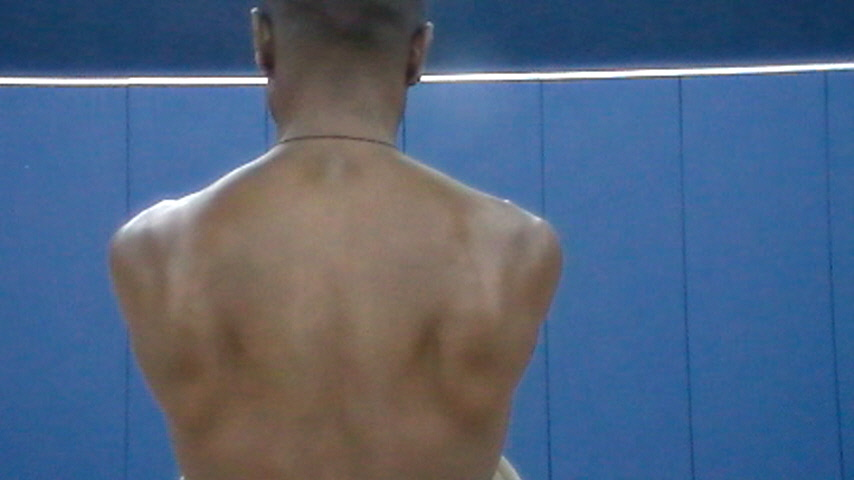 A picture of the position of the scaplae when there is minimal muscle tone in the back.