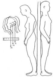 Good posture/Bad posture